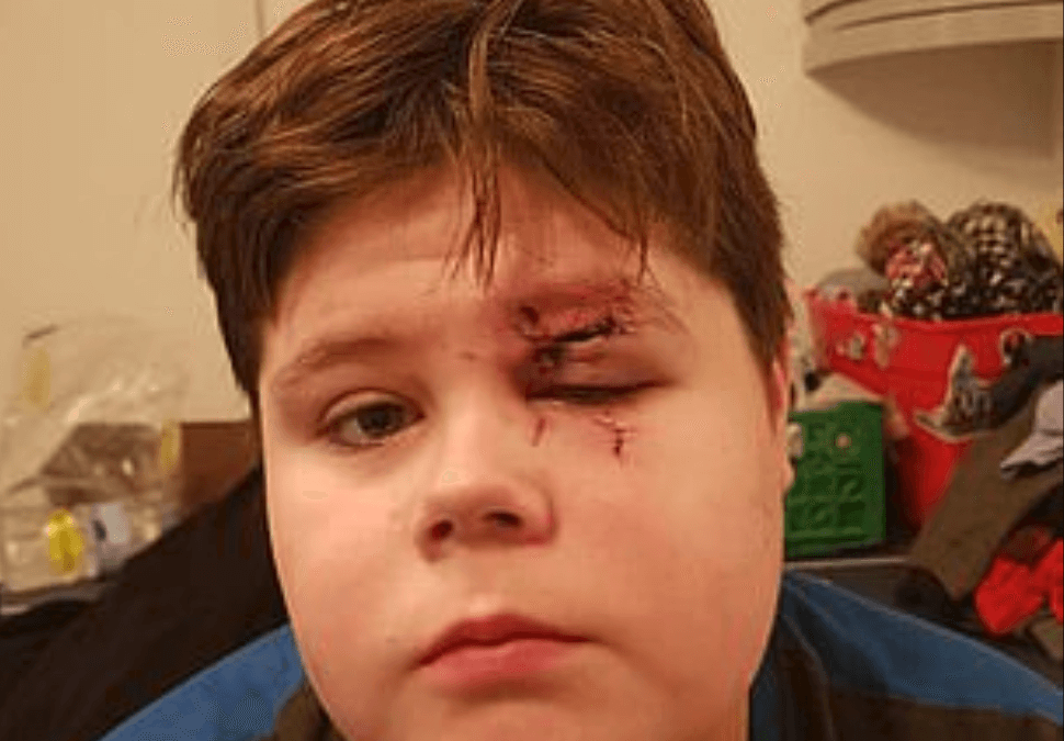 Bully Nearly Blinds Boy After Smashing His Glasses into His Face